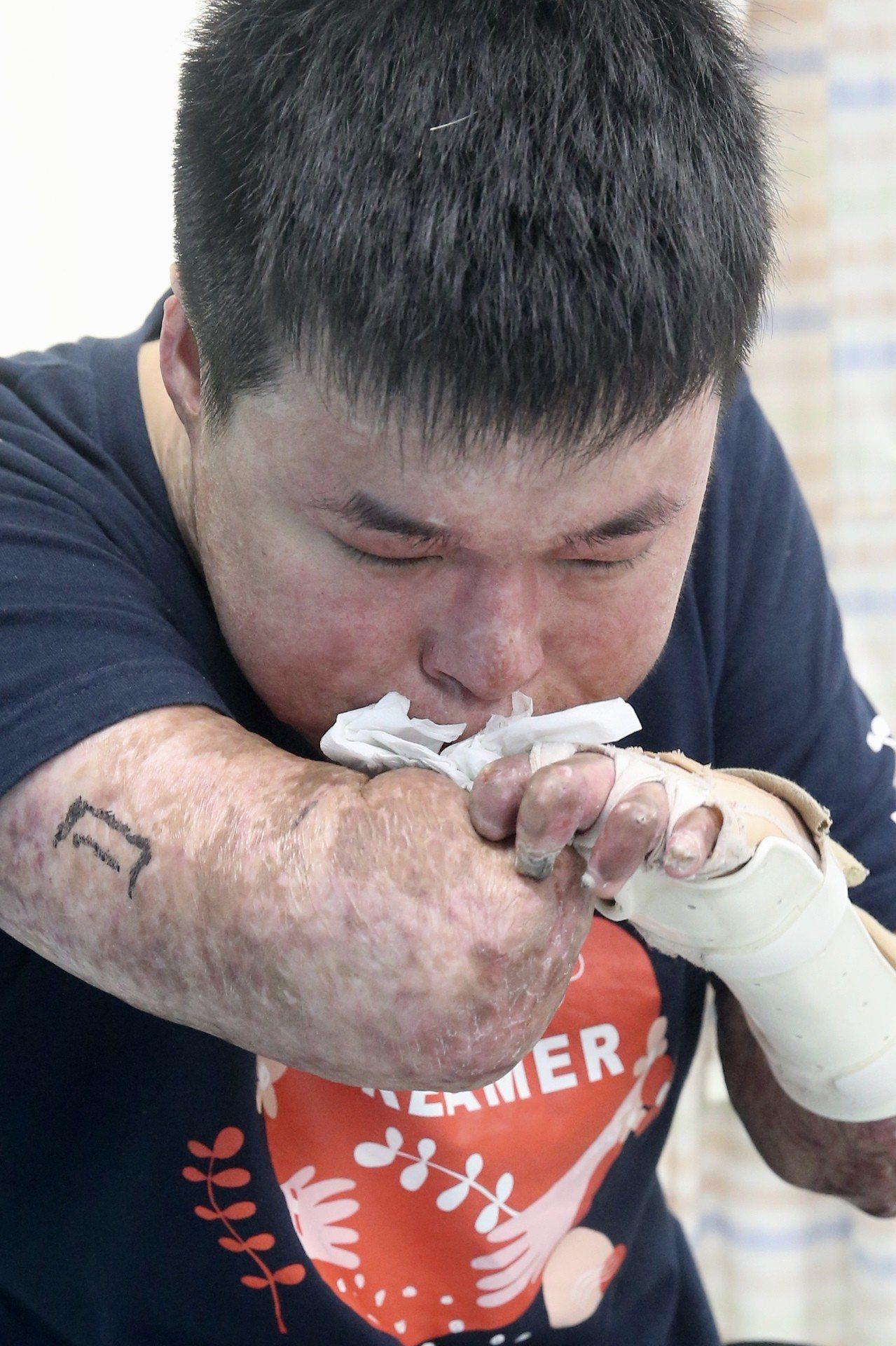 八仙傷友黃博煒擦試復健後的汗水。記者林伯東/攝影