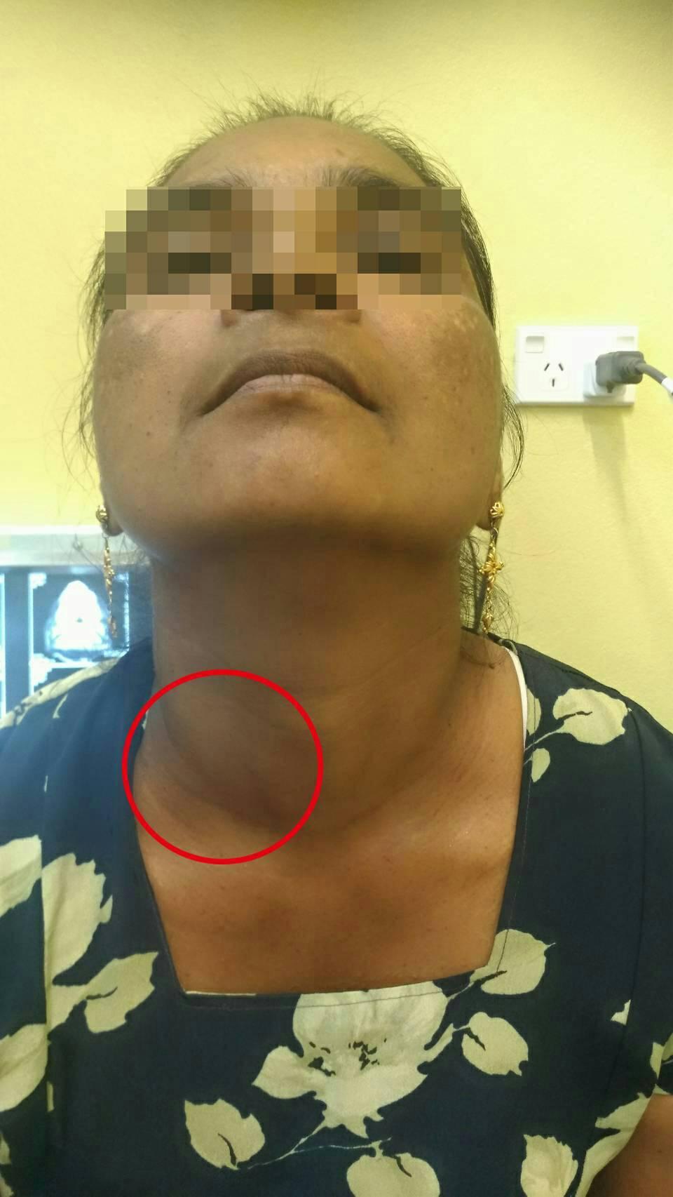 57歲斐濟婦人患甲狀腺腫逾六年,脖子外觀腫如雞蛋,一活動就呼吸困難。 圖╱國泰醫...