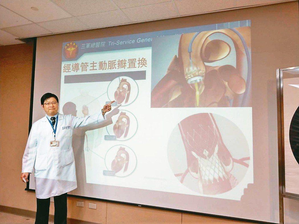 三總心臟血管外科醫師柯宏彥表示,微創經導管主動脈瓣置換手術可取代傳統開胸手術。 ...
