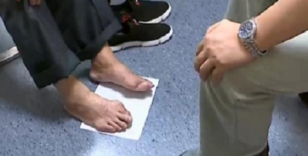 張先生患有十多年的痛風,手指、手肘和腳趾關節都已嚴重凸起變形。圖取自看看新聞