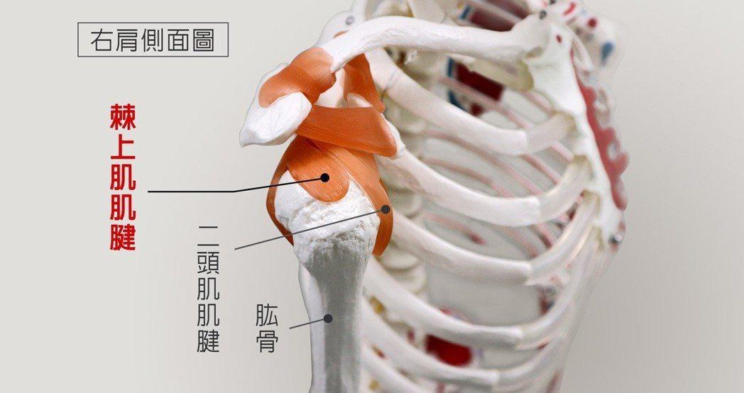 肩旋轉肌腱撕裂傷最常發生於棘上肌肌腱 圖/菁英診所 提供