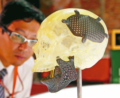 3D列印破損的肋骨以及頭蓋骨及下顎。