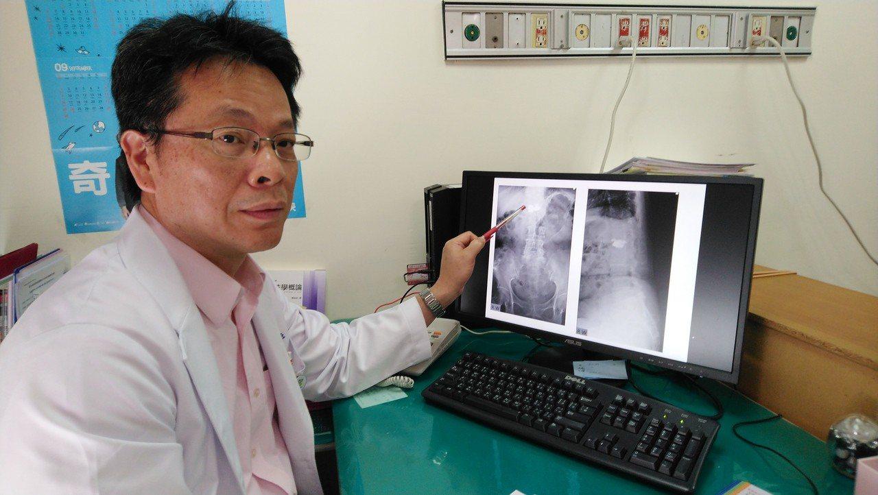 豐原醫院骨科醫師江福財手指表示,曾婦為第一腰椎骨折。記者余采瀅/攝影