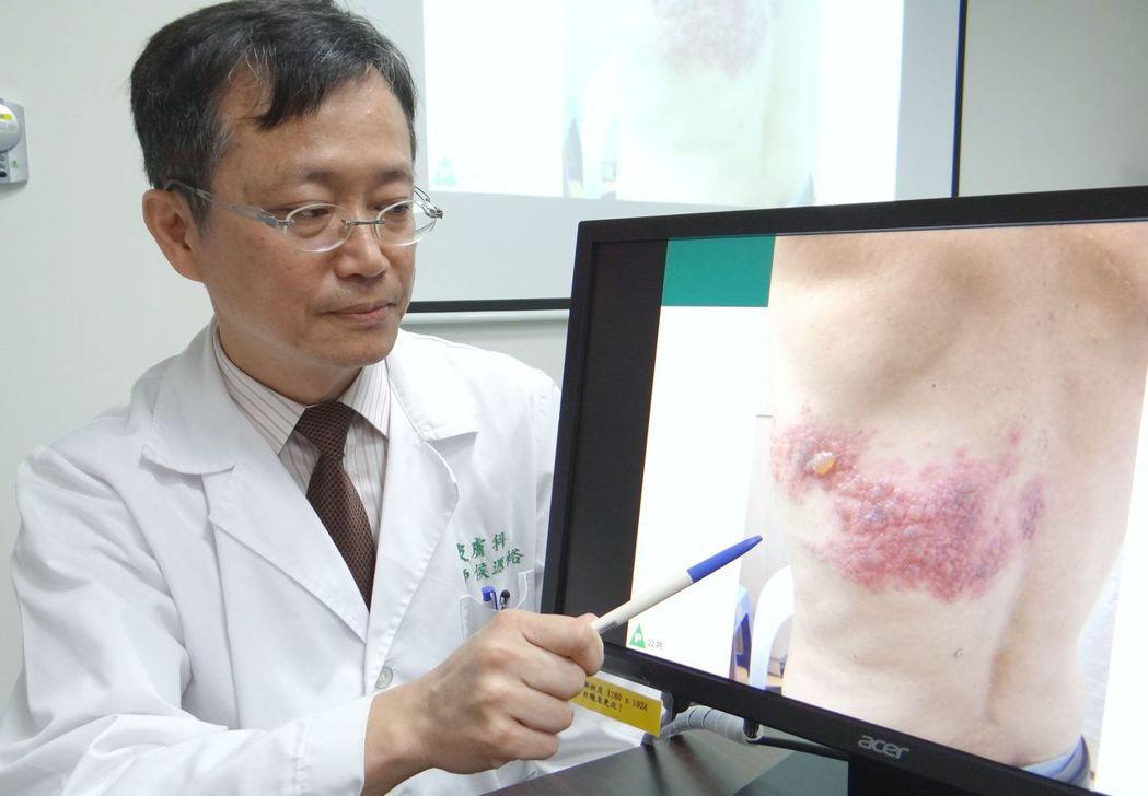 奇美醫學中心皮膚科主治醫師侯源裕提醒民眾帶狀疱疹可能帶來的疼痛與後遺症。圖/奇美...