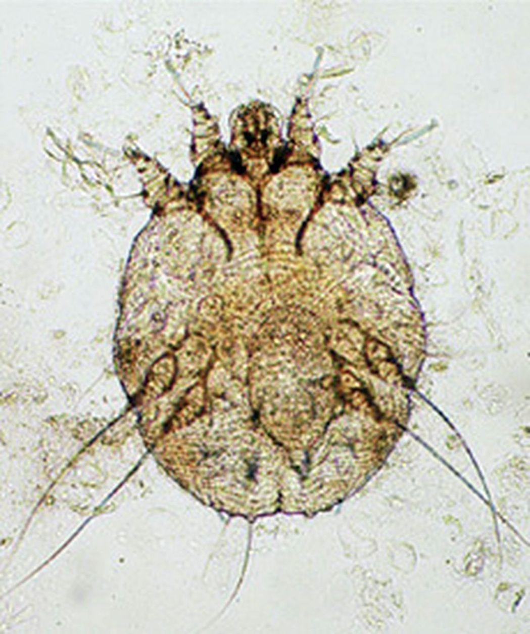 蚧蟲體小,肉眼看不到,寄宿皮膚角質層後會引起感染性發炎,皮膚起疹發癢。圖/義大醫...