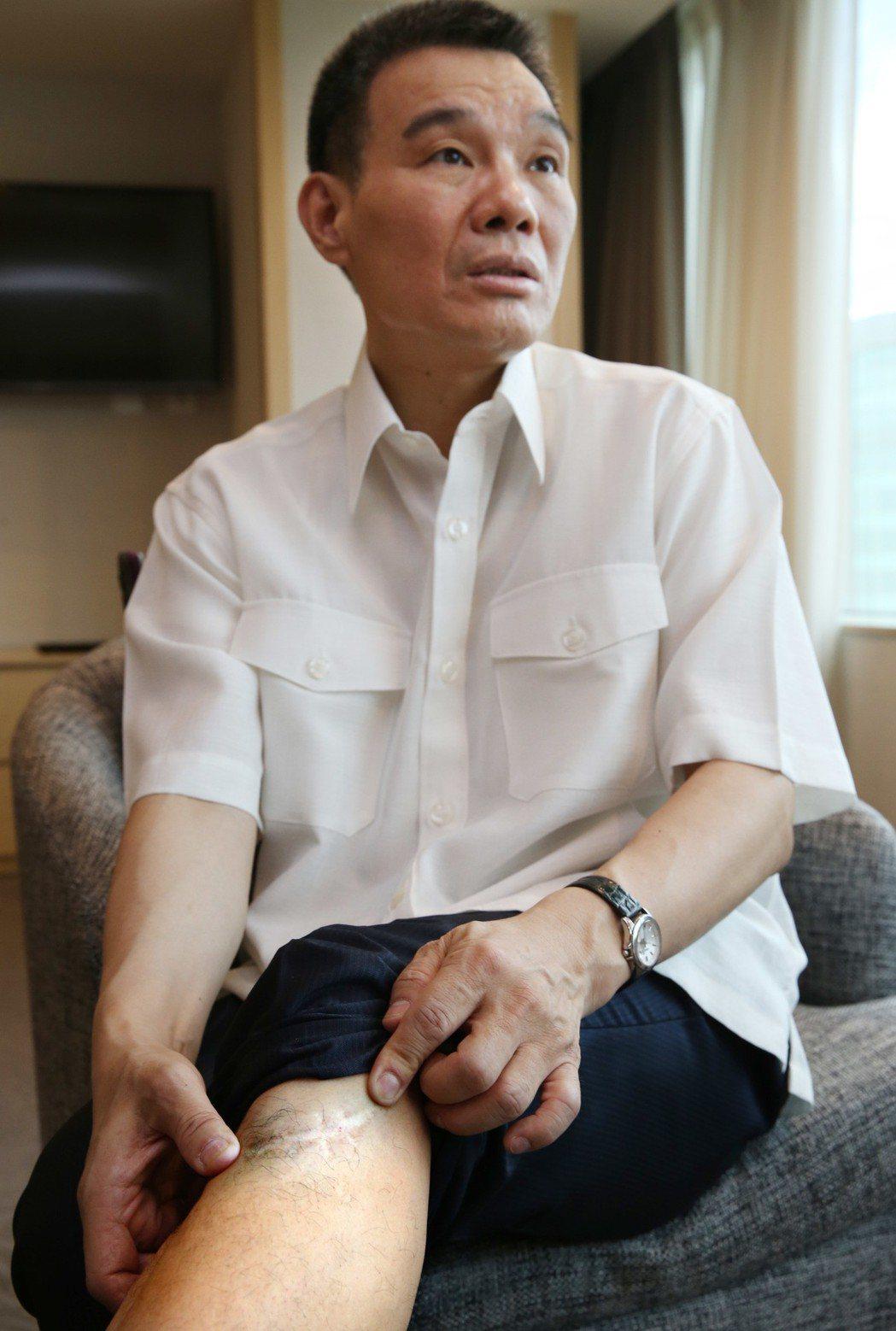 歌手陳雷,八九歲時在家玩耍,就在腿上撞出一個大傷口。記者林俊良/攝影