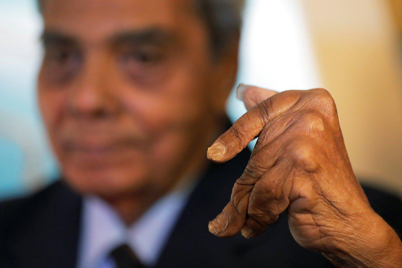 印度阿公奇拉爾11日剪下左手創金氏世界紀錄的超長指甲,他左手已因為留指甲而變形。...
