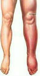 深部靜脈栓塞常是急性發生,平常好好的卻突然腳腫起來,壓下去會回彈,從外表看來沒有...