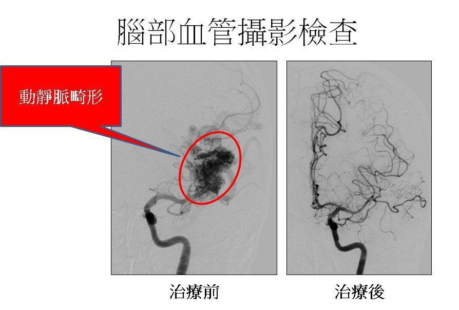 腦血管動靜脈畸形。圖/長庚醫院提供