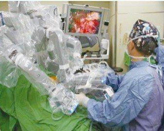 以達文西機器手臂進行胰十二指腸切除微創手術,傷口非常小,為傳統剖腹手術。 圖╱台...