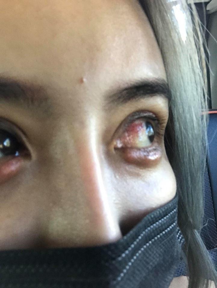 雪碧不鳥爆料,在臉書PO紅眼照。圖/摘自雪碧臉書