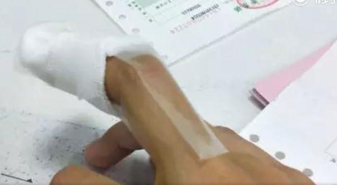 劉小姐發現手指長了倒刺,隨手將倒刺撕掉。沒想到指甲邊緣出現皮膚腫脹和化膿的症狀。...