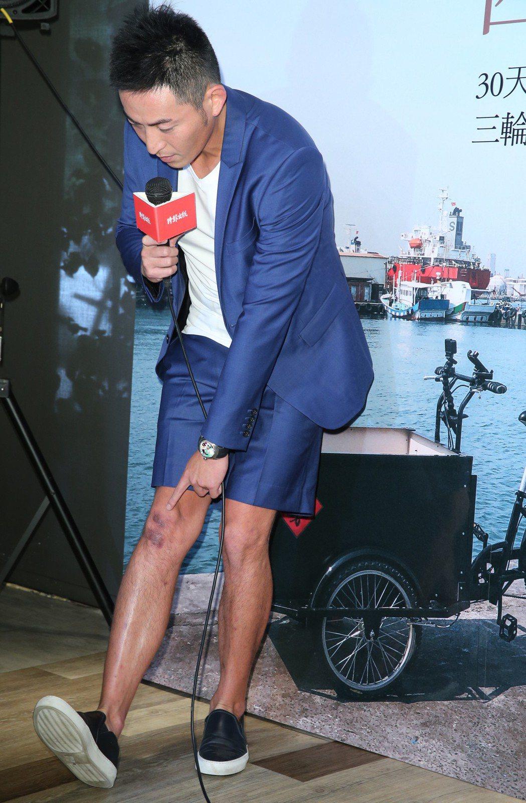 趙駿亞舉行新書《踩向環島之西南東北》發表會,展示摔車後膝蓋的傷口。記者徐兆玄/攝...