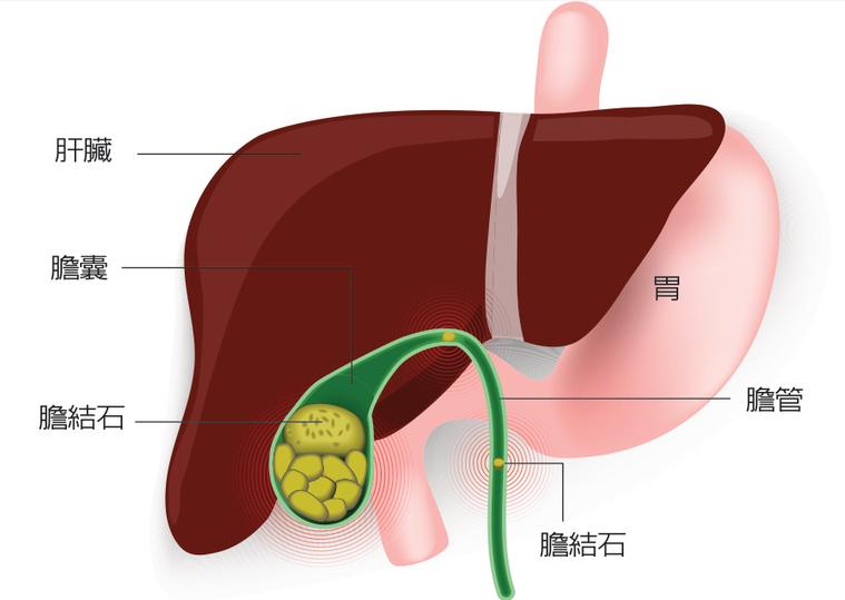 膽囊示意圖。 圖/123RF