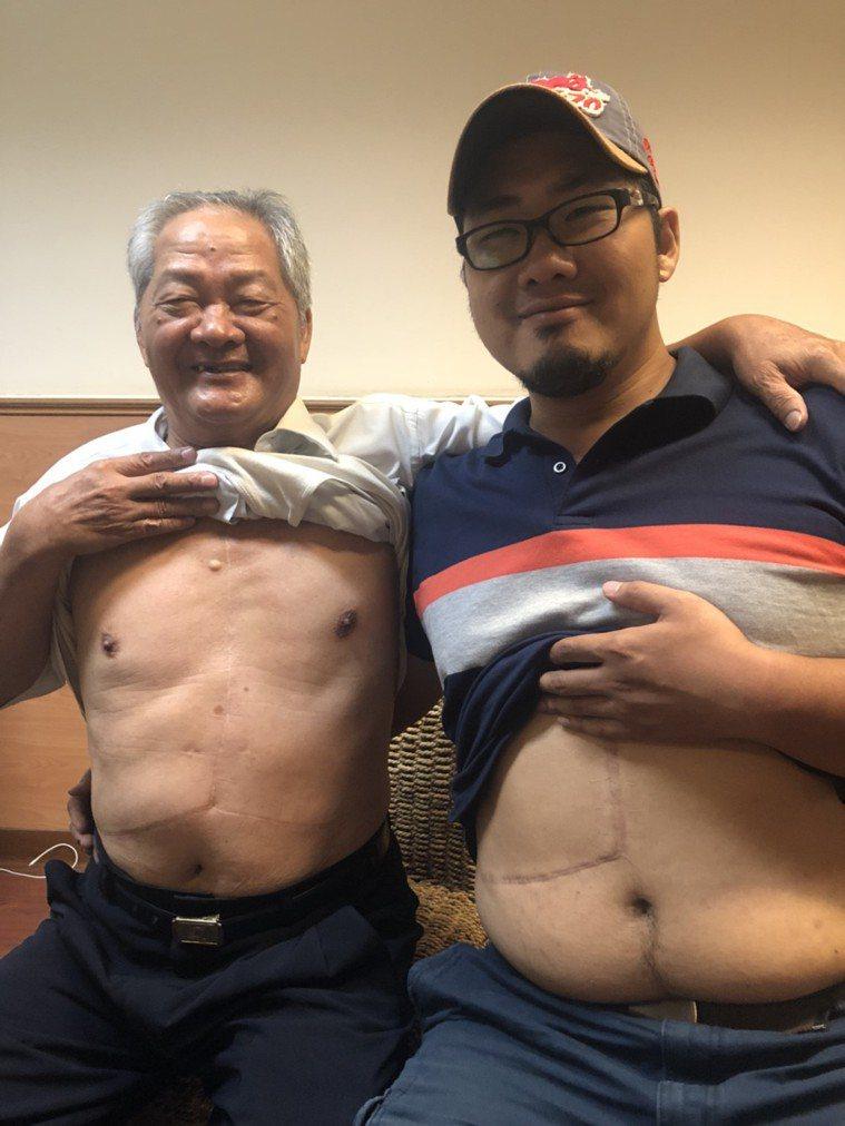經營麵包店的吳永昌(左)經么子吳俊俞捐肝後重拾健康,兩人身上留下術後愛的印記。記...