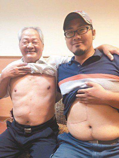 經營麵包店的吳永昌(左)經么子吳俊俞捐肝後重拾健康,兩人身上留下術後愛的印記。 ...