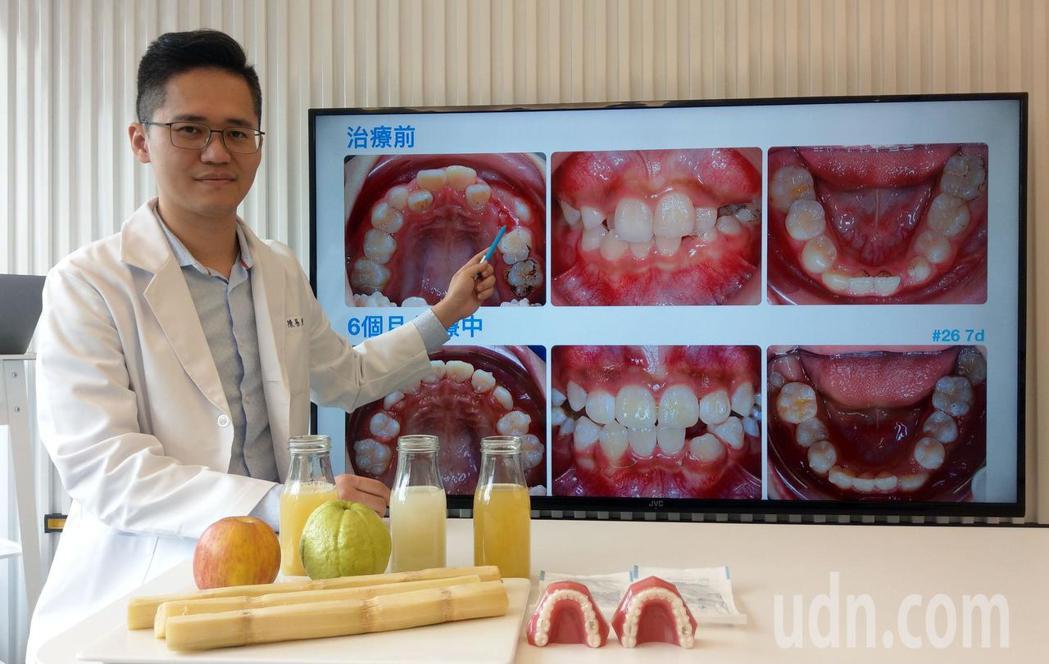 牙醫師陳易駿說明,13歲王姓國中生因只吃軟食、喝果汁,滿口的亂牙(上圖),經半年...