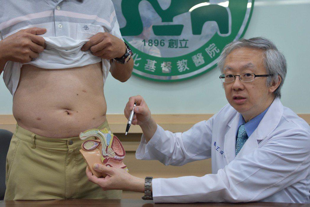彰基泌尿外科主任王百孚說,有些病患害怕做攝護腺癌手術治療,通常是擔心尿失禁、性功...