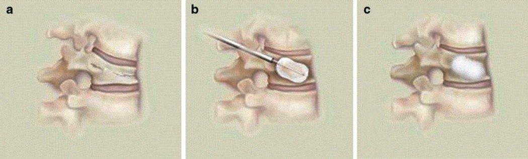 圖2 經「微創經皮椎體球囊擴張成形術」之手術基本原理。 圖/謝瑞洋