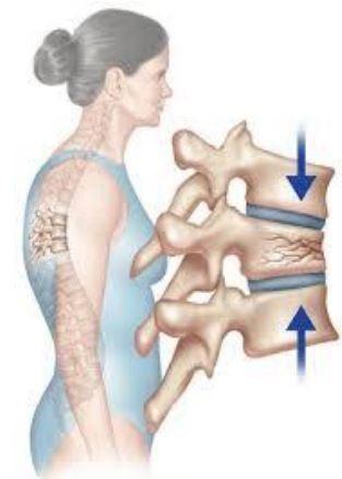 老人慢性下背痛,常見為骨質疏鬆造成的脊椎壓迫性骨折。 圖片提供/亞東醫院