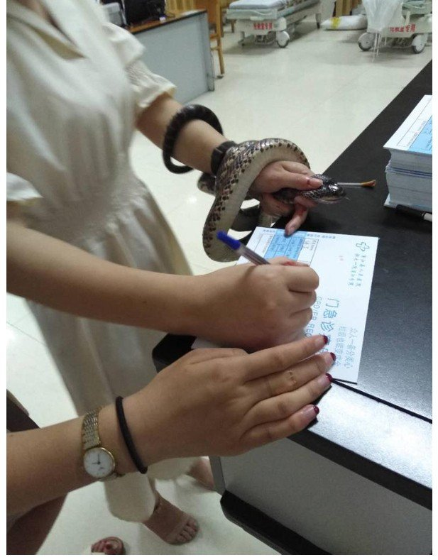 女子手握咬她的蛇,一邊填寫病歷表。圖擷自浙江在線