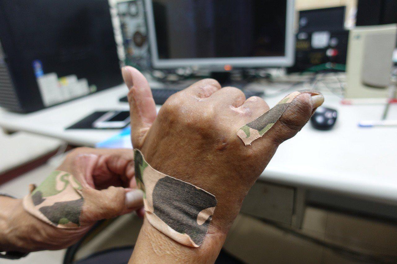 余泰運的右手小拇指腫的如同大拇指般粗,去年五月開刀手術矯正小拇指,否則可能面臨截...