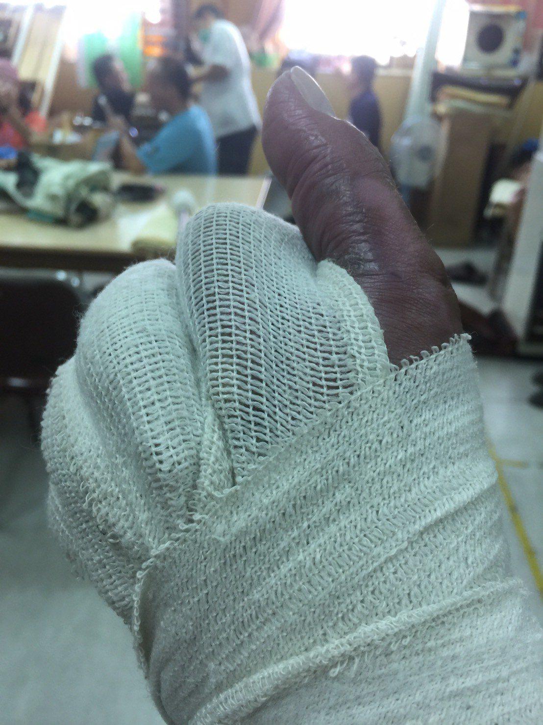 余泰運因雙手燒燙傷嚴重,去年五月又開了第十三次手術,做手掌指縫切開釋放壓力,小拇...