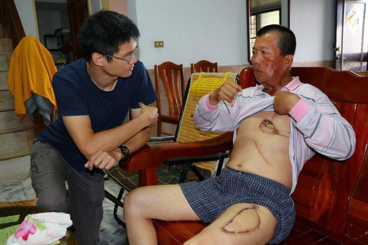 醫生先後取江大哥大腿皮肉、胸大肌修補臉部缺損,使得他住院期間疼痛難熬。圖/陽光基...