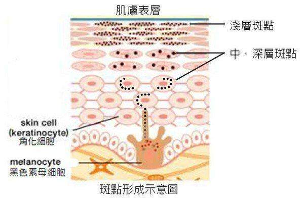 肌膚原有的黑色素母細胞,經環境或體內賀爾蒙刺激後,會製造黑色素,慢慢將黑斑推向皮...