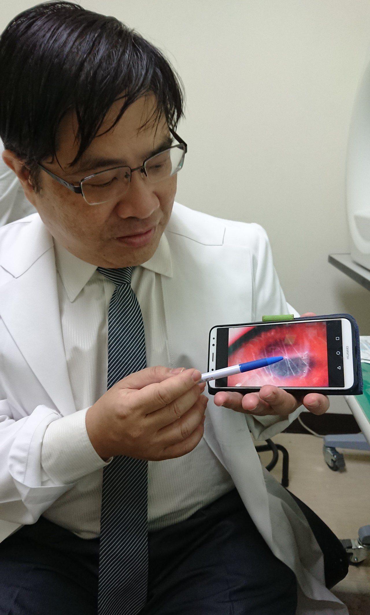 眼科醫師洪啟庭說,一名配戴角膜變色片患者因拔不下鏡片,眼角膜上布滿指甲抓痕。記者...