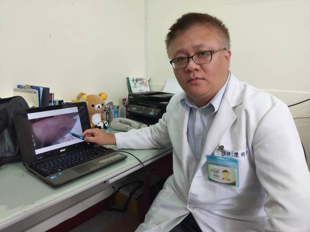 豐原醫院高壓氧中心主任陳明澤指出,浴室裡是許多人容易滑倒受傷的地方,只要有傷口一...
