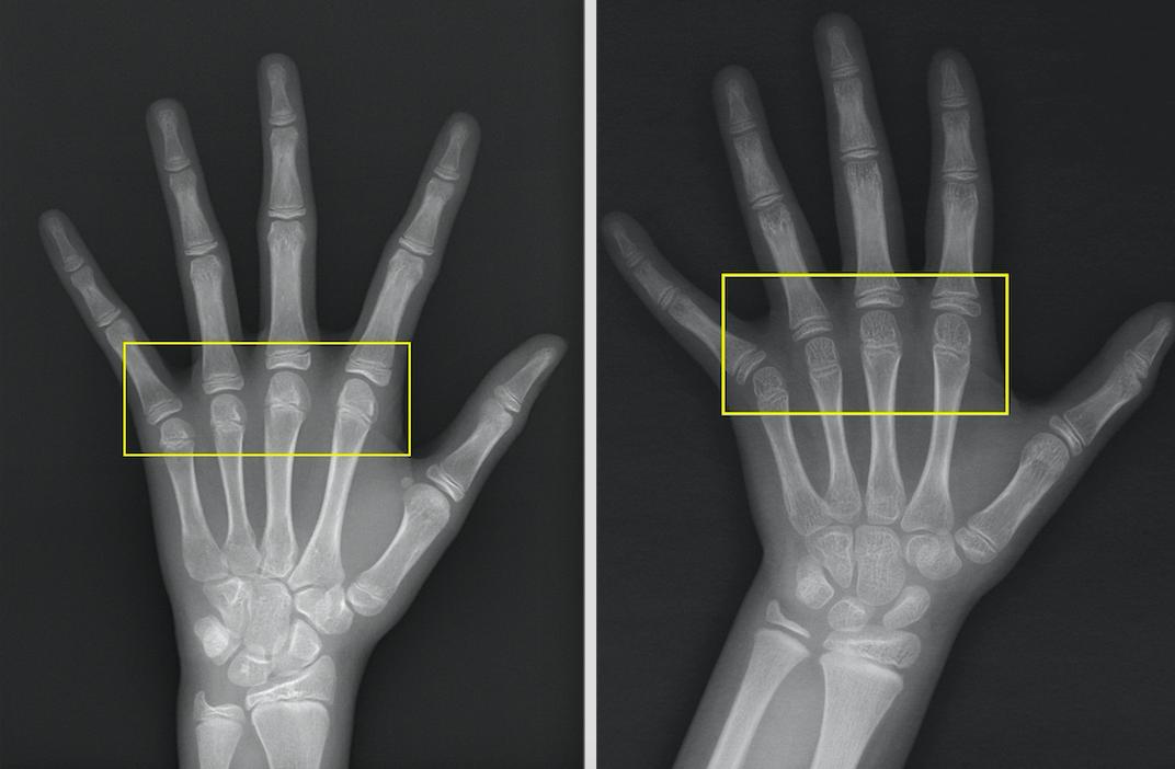 文中9歲女童的骨齡(左),比一般同齡孩童的骨齡(右)超前3年,生長板空間明顯變小...