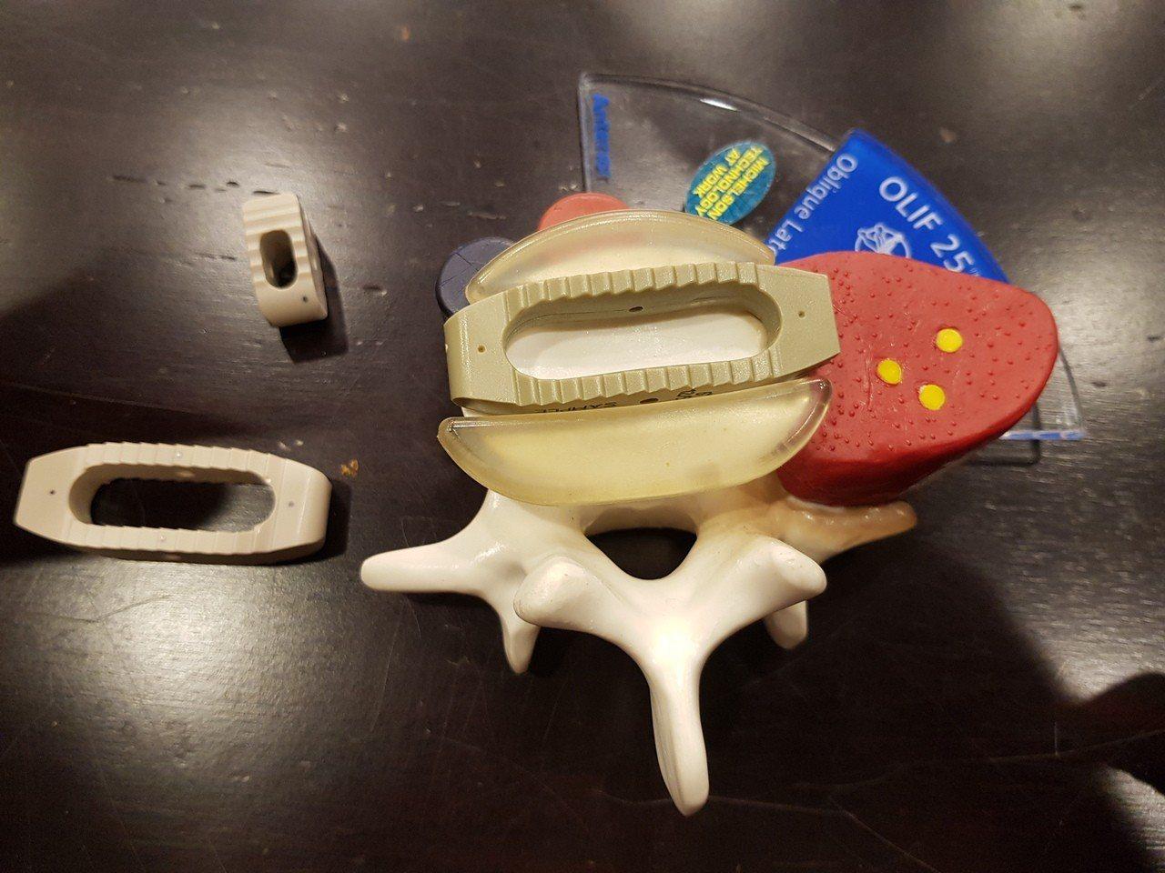 各種脊椎融合的手術器材。記者修瑞瑩/攝影