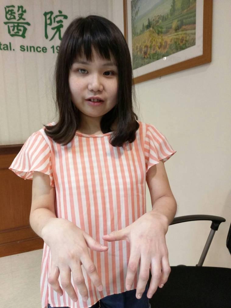 21歲的黃小姐僅剩左眼能夠看見世界,她自幼被診斷為類風濕性關節炎,12歲併發虹彩...
