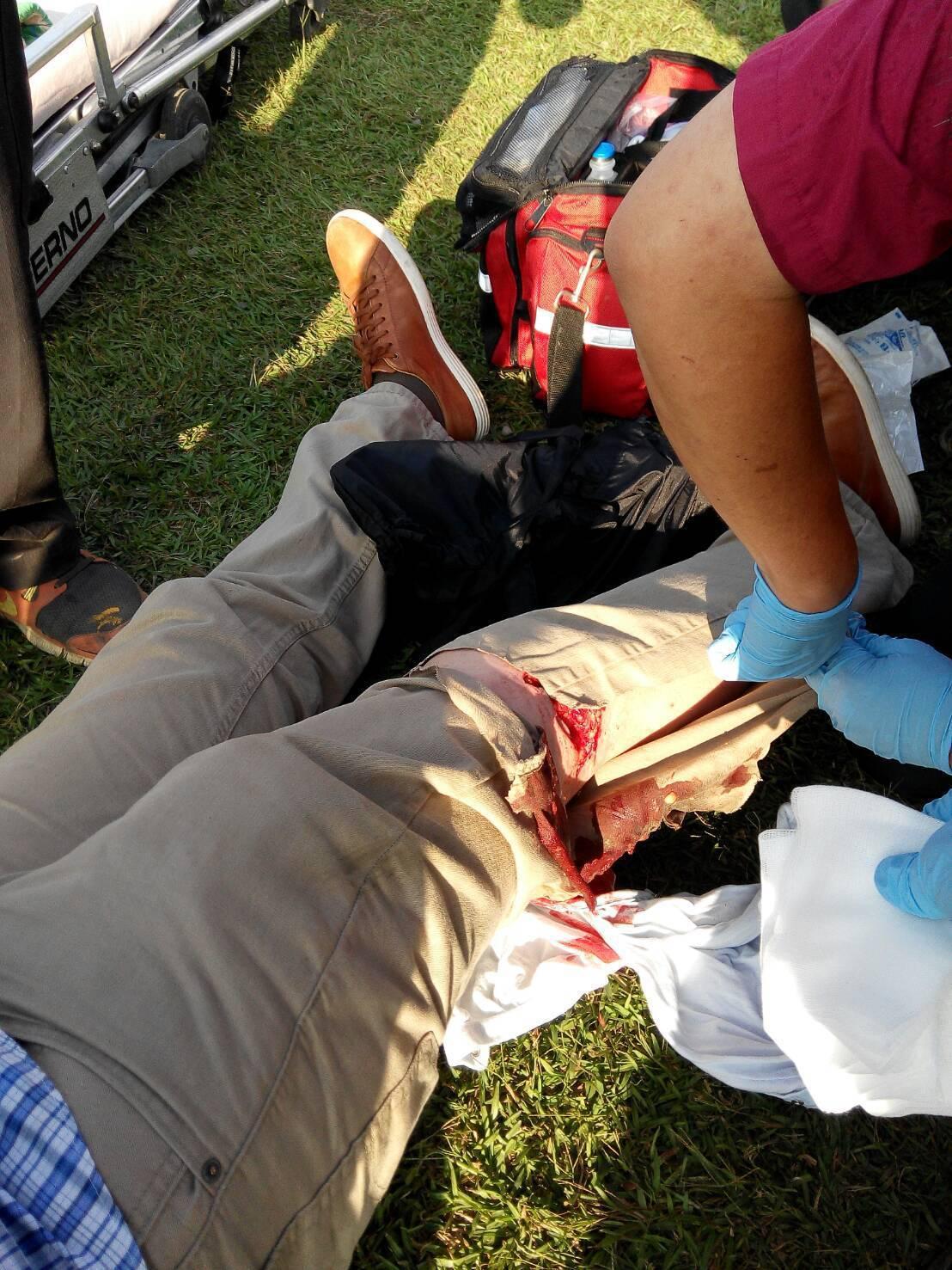 擎天崗傳出牛隻撞傷人,警消人員緊急救援,並拉封鎖線不讓遊客進出。 記者李承穎/翻...