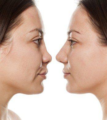 不管是為運勢或美觀,每個人都期待有個美形鼻,讓自己更有自信。但需要什麼樣的手術方...
