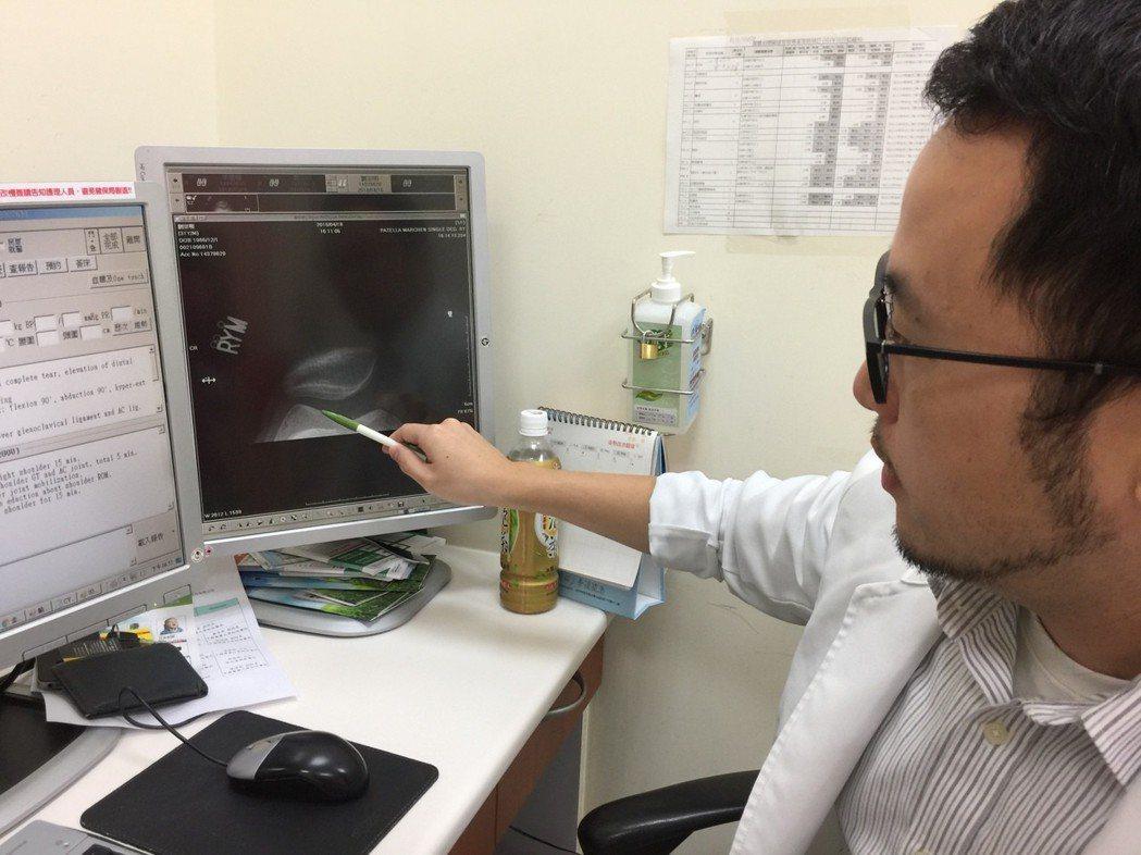 李友淳醫師解說病友膝蓋受損狀況 臺中榮總/提供。