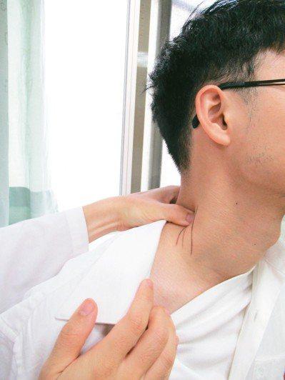 臨床常見神經卡壓的部位,為頸部斜角肌群。 圖╱呂彥璋醫師提供