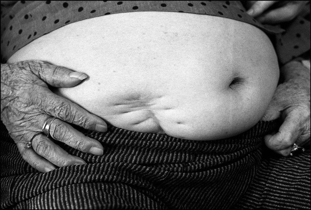慰安婦劉黃阿桃阿嬤等不到日本道歉,在2011年過世,她在二戰期間曾開刀取出美軍轟...
