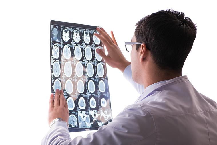 影像學可以幫助醫師診斷。其中電腦斷層掃描、磁振造影、正子造影是最常被提起的「重裝...