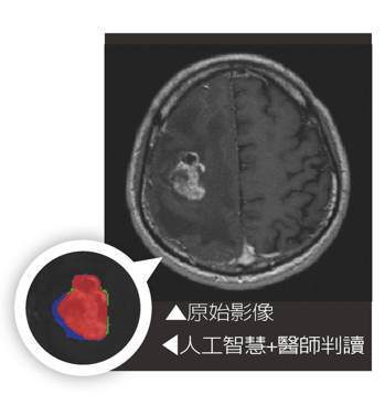 影像經醫師與人工智慧判讀,藍色為醫師判讀,綠色為人工智慧判讀,紅色為兩者皆判讀。