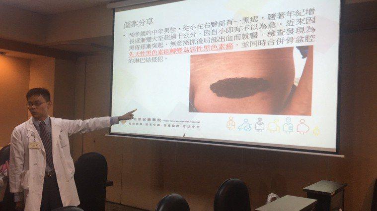 台北榮總皮膚部主治醫師李政源說,我國黑色素瘤每年約有200多個新病例,最常長在四...