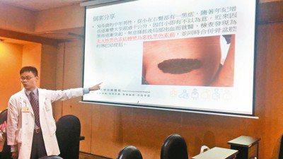 台北榮總皮膚部主治醫師李政源說,我國黑色素瘤每年約有200多個新病例,病灶最常長...