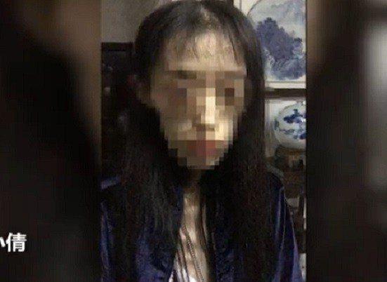 21歲女孩「小倩」經過3年「自殺式減肥」,體重爆瘦到25公斤。取自新京報動新聞