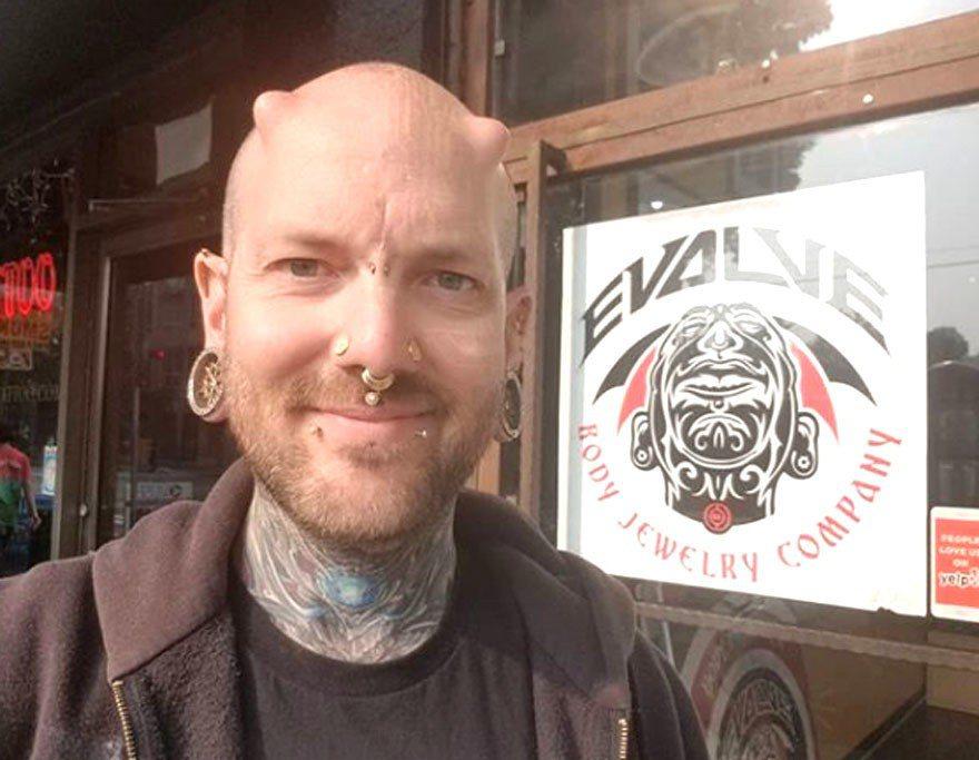 36歲加拿大溫哥華男子福克斯(Russ Foxx)自稱「電子人」(cyborg,...