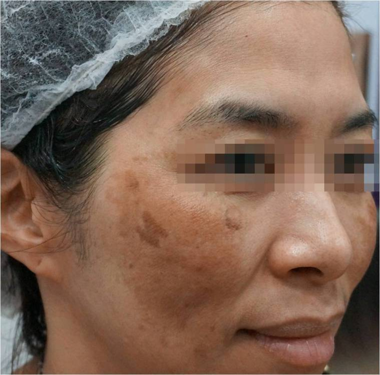 許多女性都有肝斑的困擾,兩側對稱的大片斑點,皮膚科醫師建議,這類患者必須做好防曬...