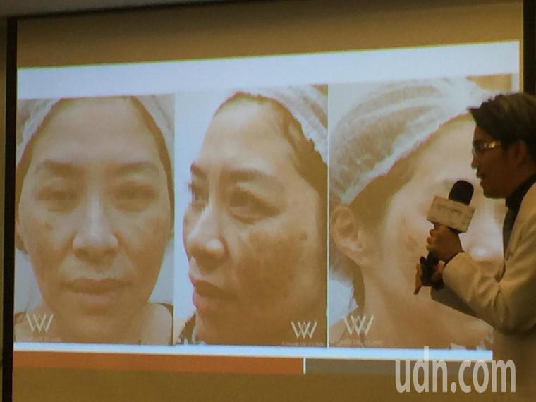 一名患者刮痧又用精油,結果臉腫成像包青天。記者陳雨鑫/攝影