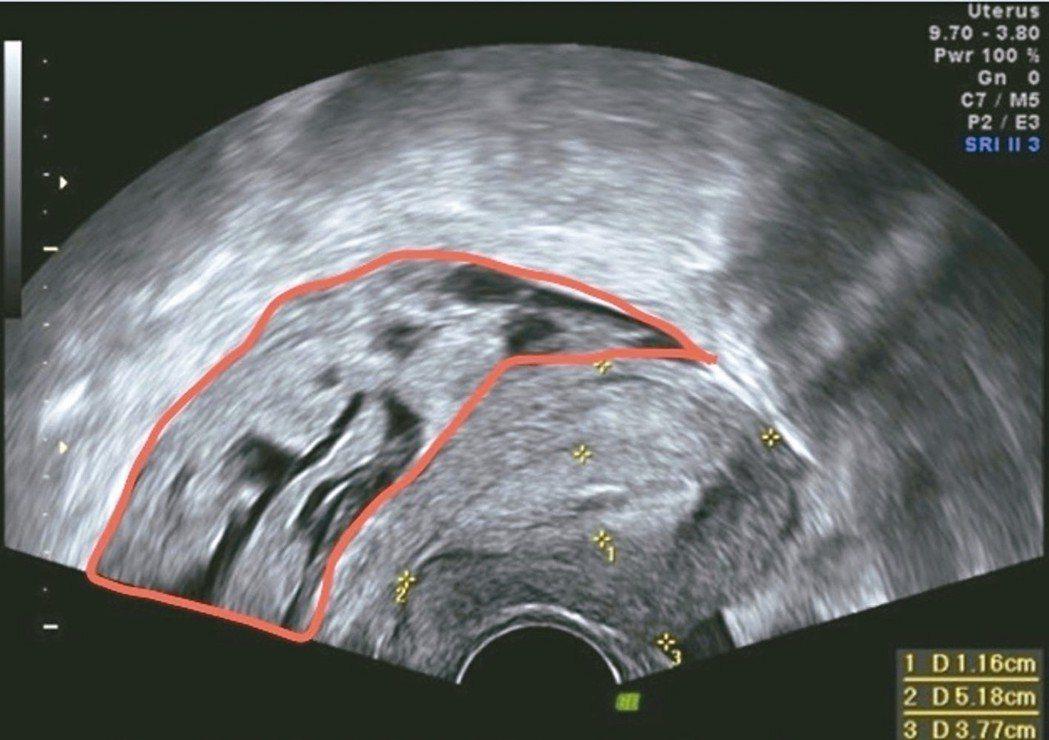 超音波影像顯示子宮直腸窩有不規則塊狀腫瘤,實際上是子宮內膜異位症。 圖/國泰醫院...