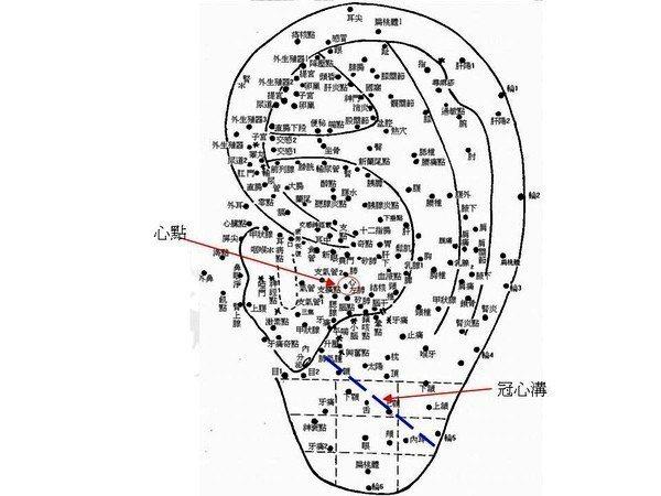 中醫四診方法是望聞切問,認為耳朵是人體的反射區,其中耳心、耳垂是「望」心臟、心血...