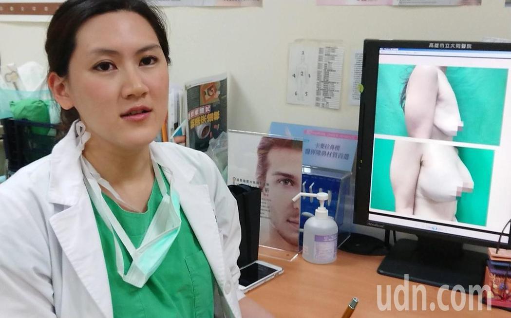 高雄市大同醫院整形外科美女醫師賴雅薇,因女病患愛找她聊「私密心事」,近幾年下功夫...